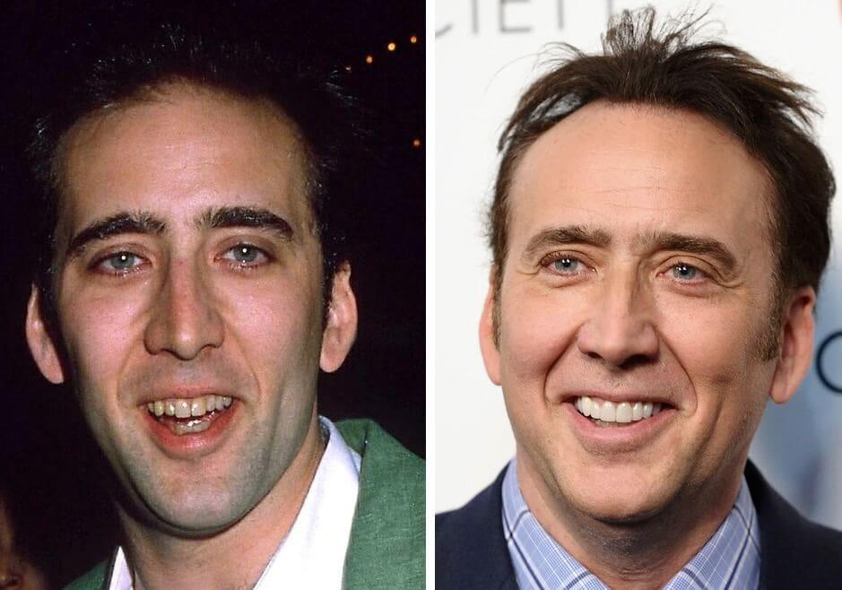 Nicholas Cage tandblekning