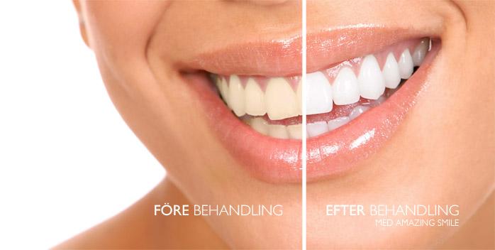 tandblekning före efter